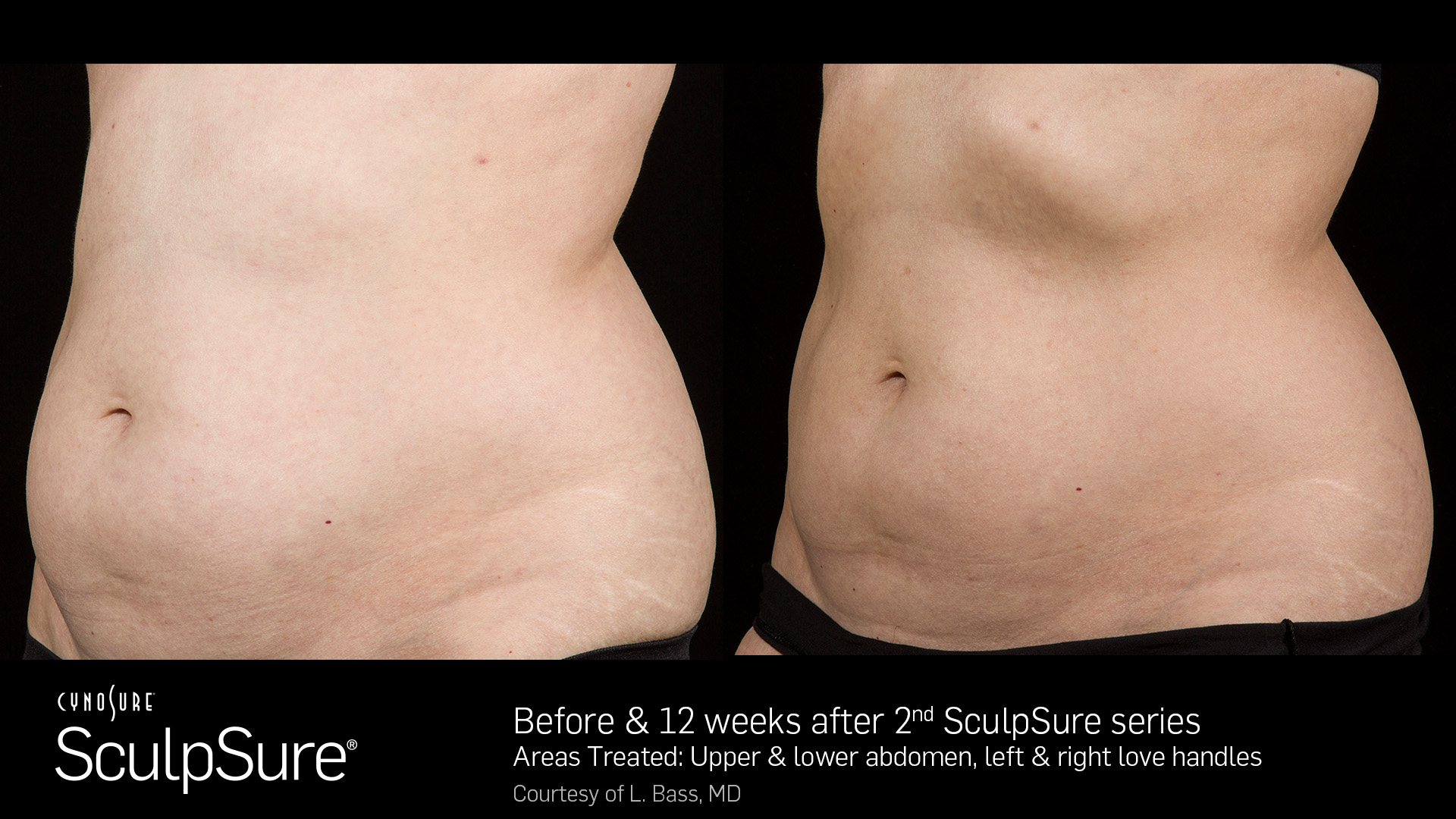 better-than-coolsculpting-alternative-sculpsure-san-antonio-best