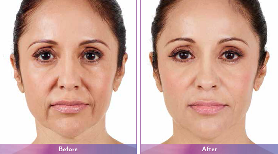 best-facial-fillers-injectable-fillers-san-antonio-juvederm-voluma-botox