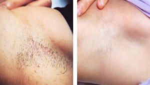 best-laser-hair-removal-san-antonio