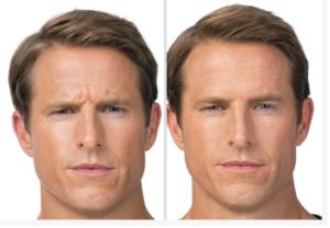 Botox-for-men-san-antonio