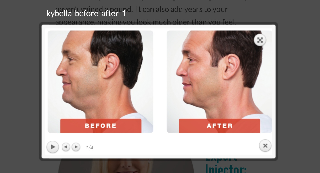 san-antonio-double-chin-reduction-best-doctor