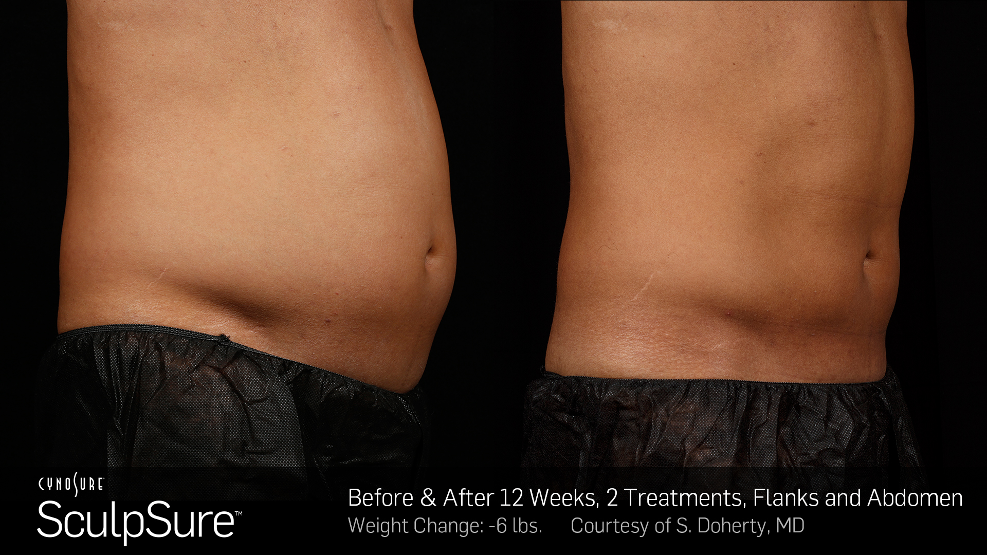 san-antonio-fat-removal-sculpsure-coolsculpting-non-surgical