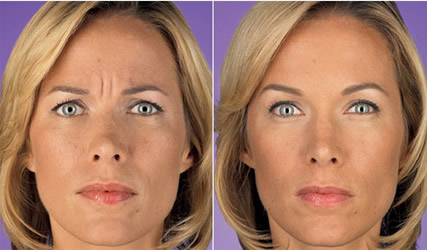 Best San Antonio Medspa For Botox 174 Fillers Lip