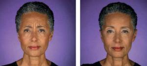 botox african american san antonio