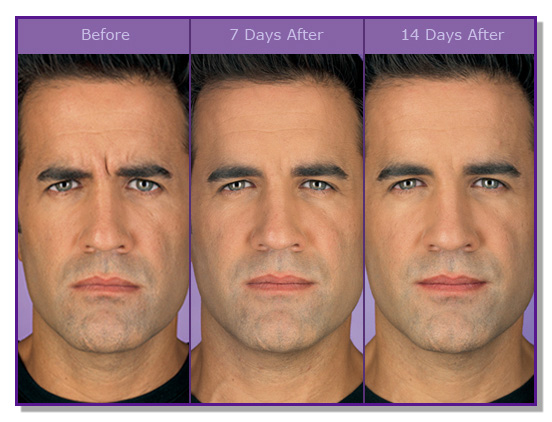Best San Antonio Medspa For Botox 174 Fillers Lip