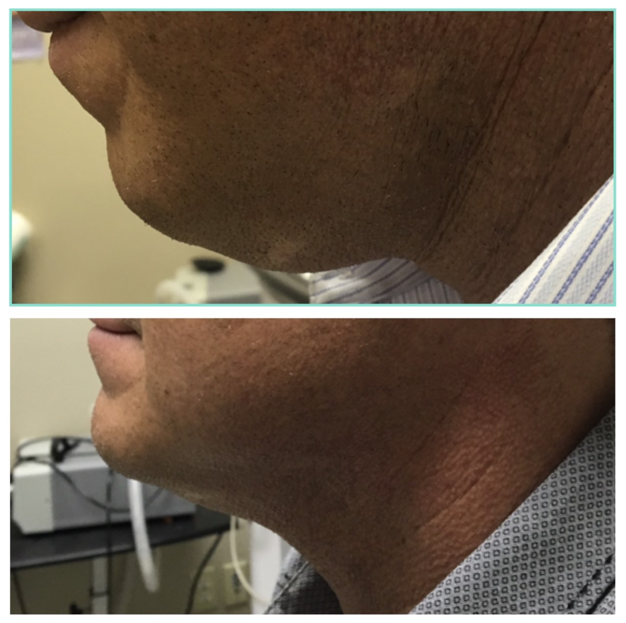 Kybella Double Chin Reduction