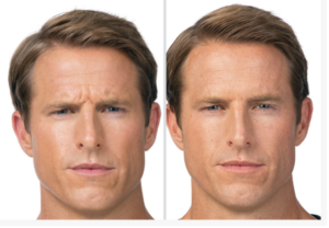 Botox-for-men-san-antonio