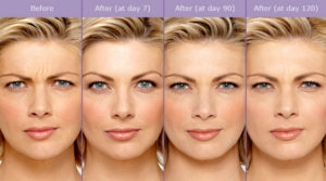 botox-career-boost-san-antonio