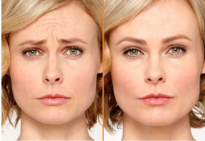 botox-for-women-san-antonio