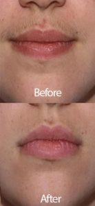 permanent-laser-hair-removal-before-after-san-antonio