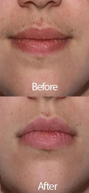 Best Facial Hair Removal System For Women